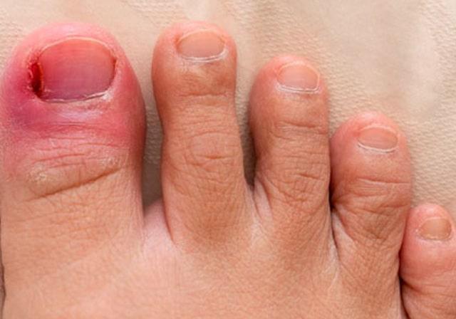 Nail Removal Surgery
