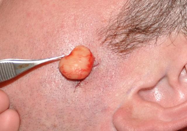 Sebaceous Cyst Surgery